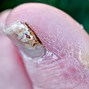 closeup-of-toenail-fungus-by-chefranden.jpg