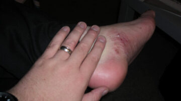 Diabetic Foot Problems Can Be Avoided With These 5 Tips