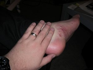 foot-sores-by-jon-a-ross.jpg