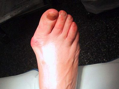 foot-with-bunion-photo-by-dr-henri-lelievre.JPG