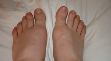 Gout Home Remedies: Foods To Eat & Foods To Avoid