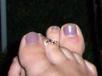 A photo of painted toenails... and feet in need of a pedicure!