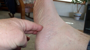 Plantar Fasciitis – Symptoms & Treatment For Heel Pain