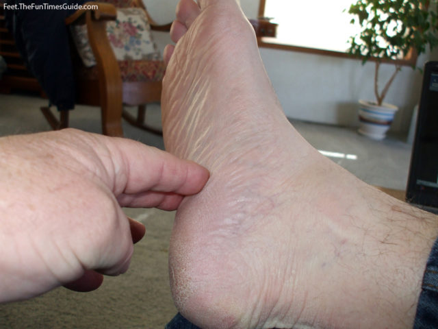 The heel pain I was experiencing was indeed Plantar Faciitis. photo by Curtis at TheFunTimesGuide.com