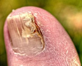 Toenail fungus can be caused by any number of molds and fungus.