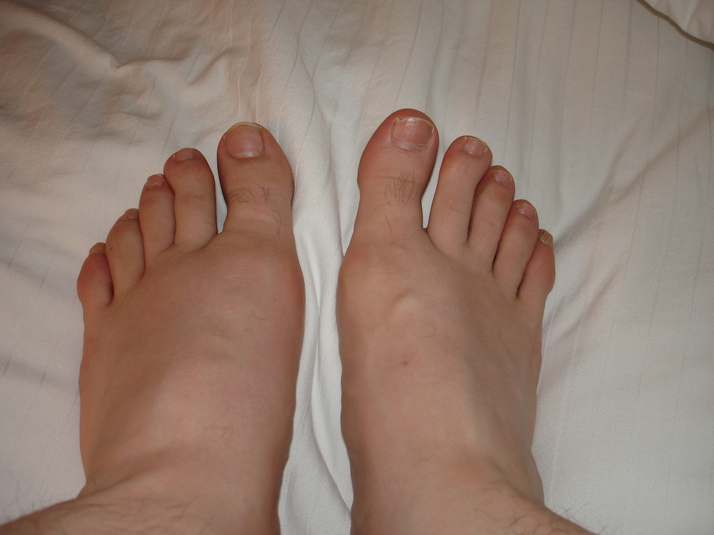 gout swollen left foot by travelin librarian Grape Juice And Gout