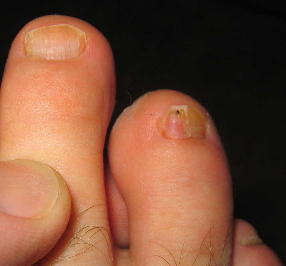 Got Funky Toes? Maybe You\'ve Got A Toenail Fungus (Trust Me, I Had ...